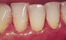 Egy kis fogászat