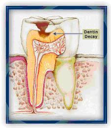 A fogszuvasodásról